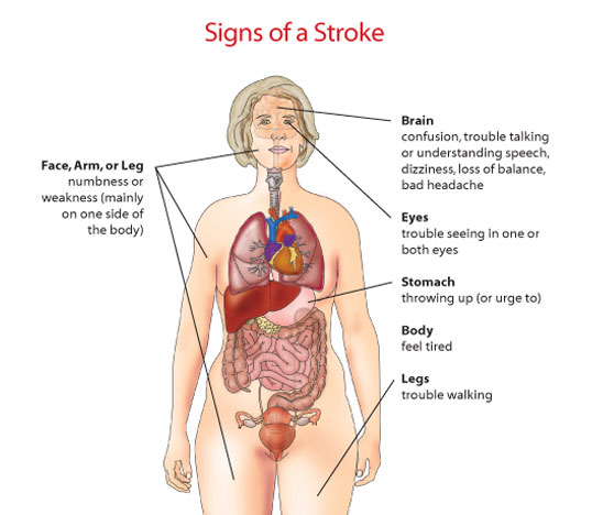 Tips For Women Protecting Your Health on Different Types Of Strokes In The Brain